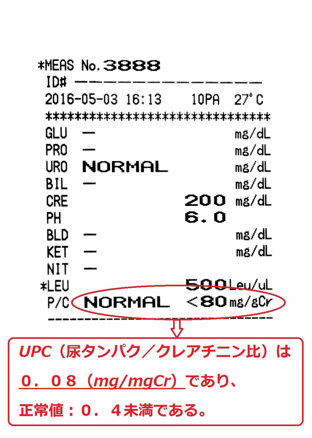 検査 蛋白 尿