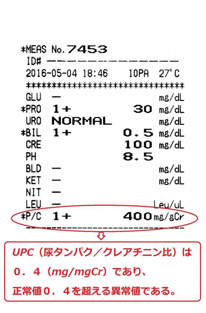 UPC高値症例'