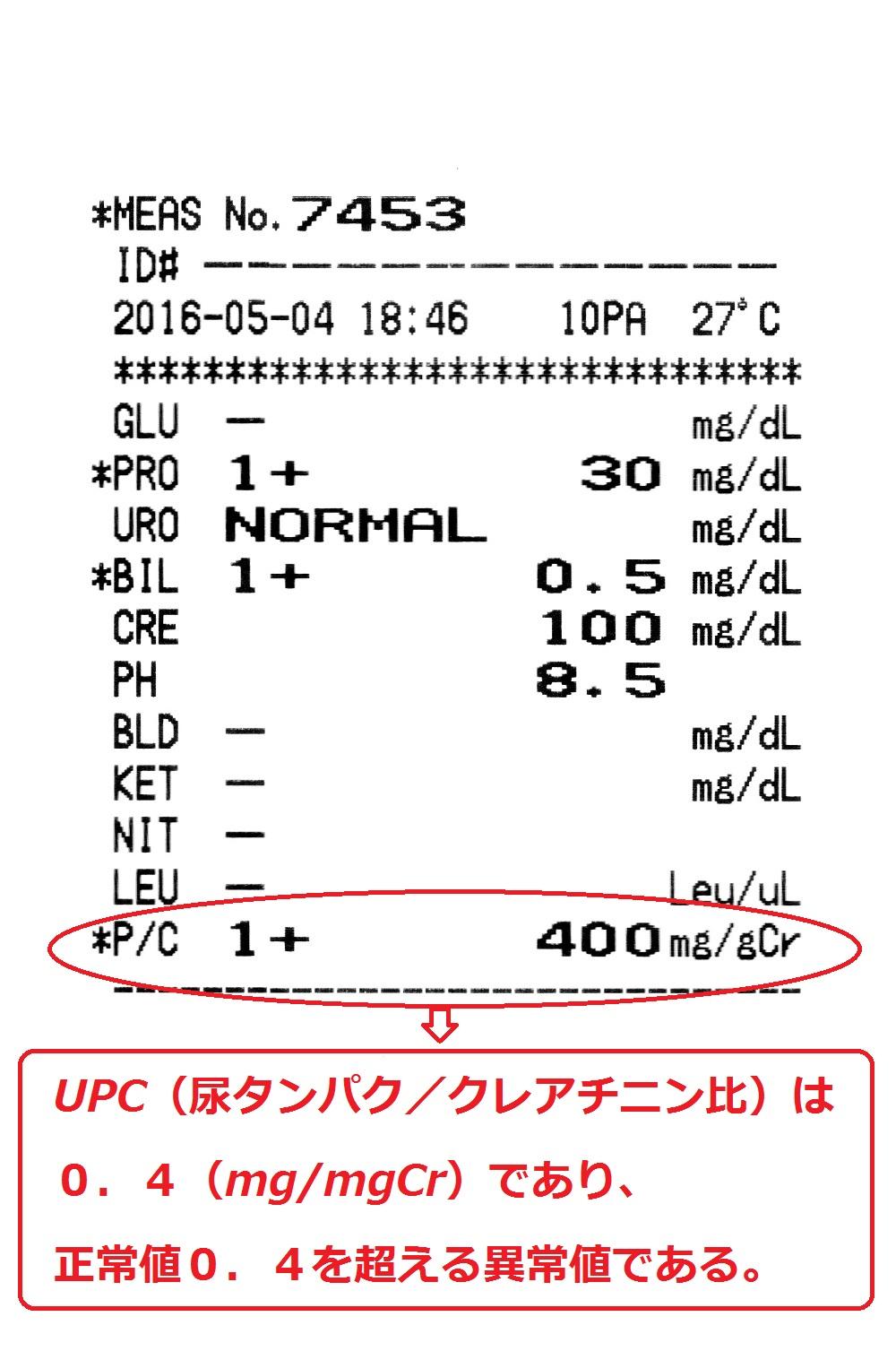蛋白 尿 検査